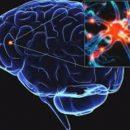 Болезнь Паркинсона можно будет выявлять задолго до появления симптомов